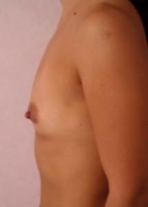 implanturi mamre