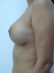 reductie mamara