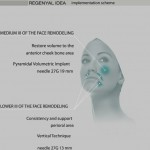 regenyal-idea-2-150x150