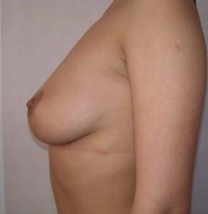 pret implant mamar