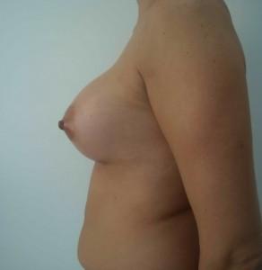 implant mamar siliconic pret