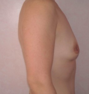 clinica implanturi mamare Bucuresti