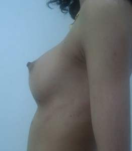 pret implant mamar silicon