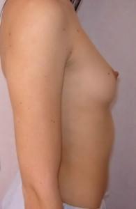 pret implanturi mamare siliconice