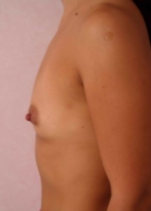 oferta implanturi mamre