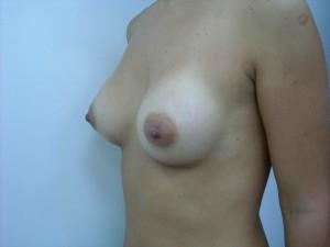 oferta implant mamar
