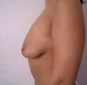 marirea sanilor implant