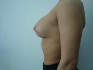 implanturi mamare