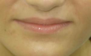 marirea buzelor acid hialuronic