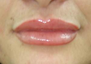 marirea buzelor