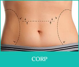 chirurgie estetica pentru corp